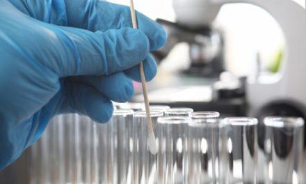 Covid-19 : Bientôt des dépistages dans tous les laboratoires de France ?