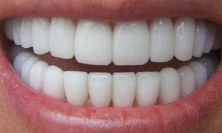 Astuce de blanchiment de dent avec fruits et légumes